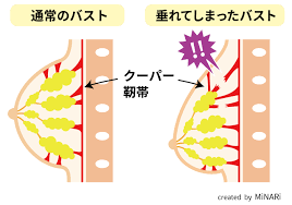 「クーパー靭帯」の画像検索結果